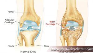 Penyakit Osteoarthritis