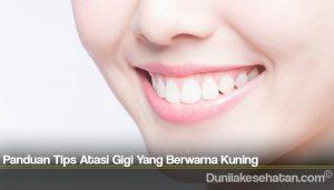 Panduan Tips Atasi Gigi Yang Berwarna Kuning